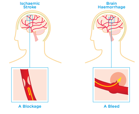 Types of brain injury: stroke and haemorrhage